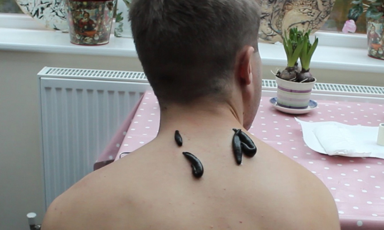 BENEFITS OF LEECH THERAPY