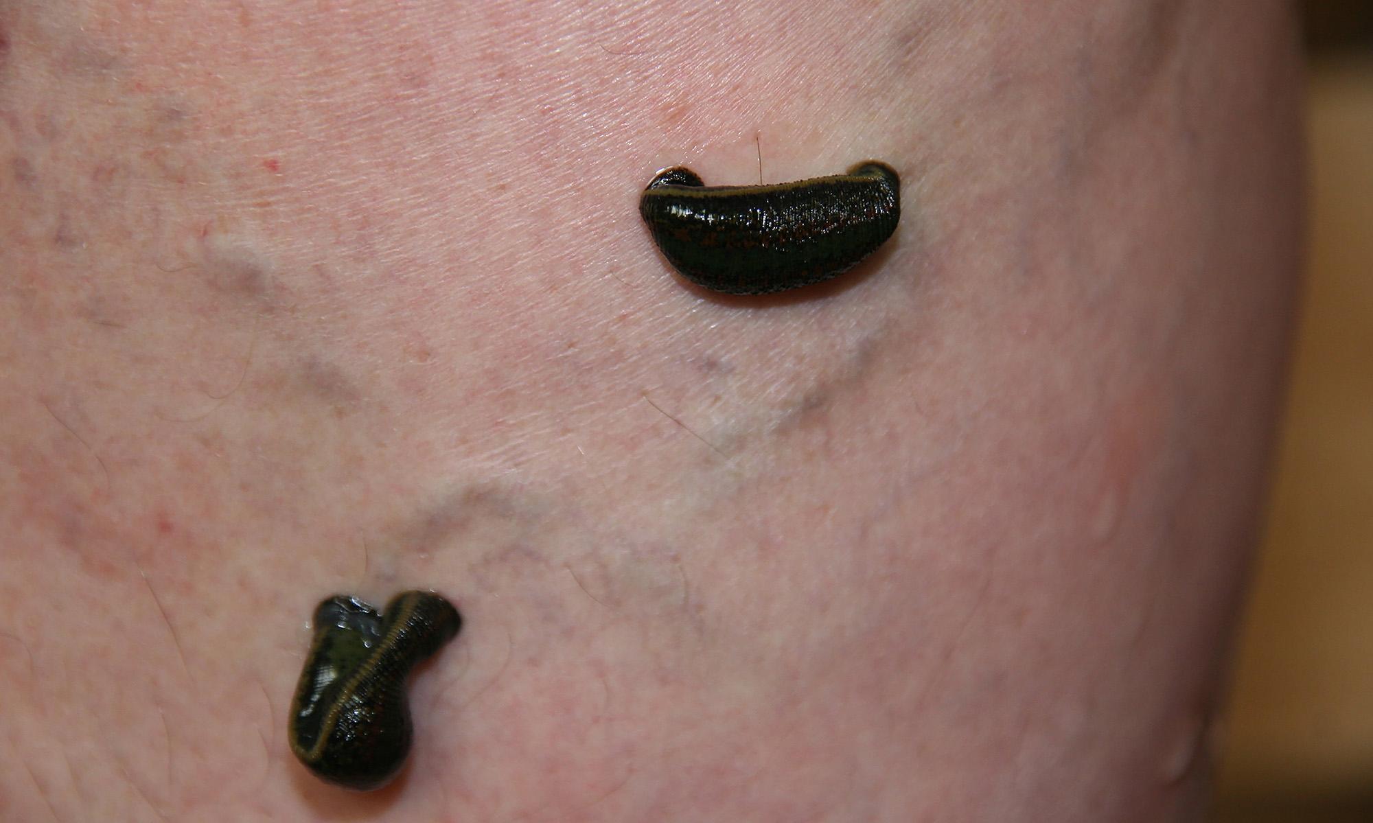 de la varicoză atunci când hrăniți unguent